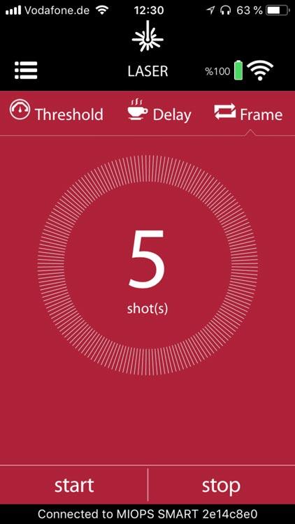 MIOPS Smart App